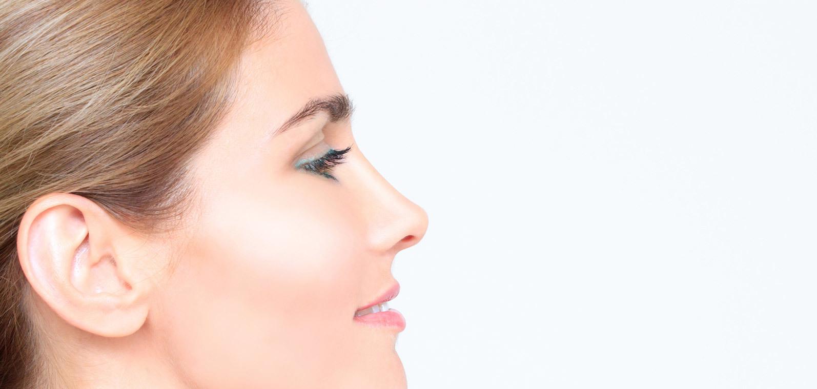 Aquiline nose correction (humped nose) | Heidelberg Mannheim